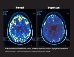Pet scan of normal brain and depressed brain
