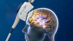 Step Three: Target areas of the brain receive focused magnetic stimulation