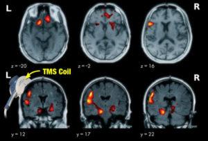 NeuroStar neuroimaging studies