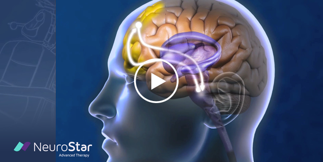 View How Does NeuroStar Work Video