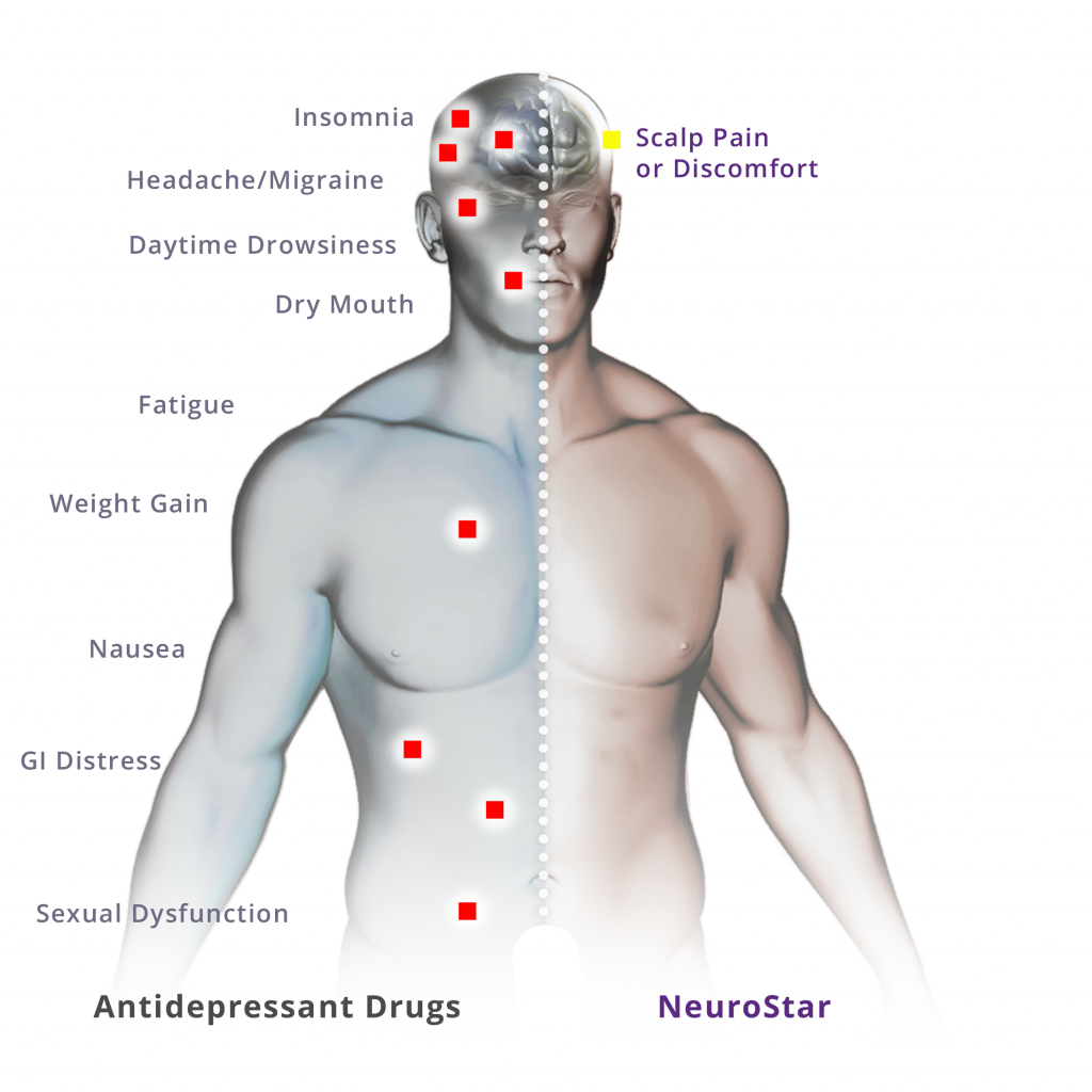 neurostar tms therapy side effects and safety profile neurostar